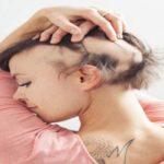 O que é a alopecia?